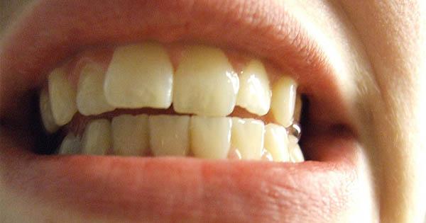 Ako si vybieliť zuby a získať žiarivý úsmev